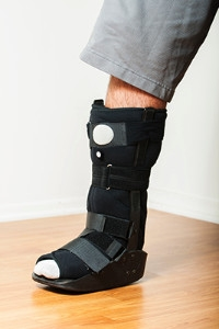 Causes and Symptoms of a Broken Foot