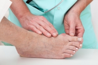 Is There A Reduction of Bunions in Non-Western Countries?