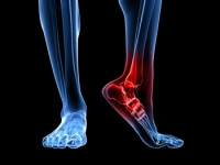 Ankle Sprains May Be Common Among Athletes