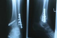 Understanding the Basics of Stress Fractures